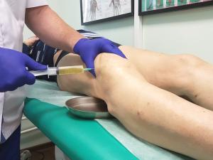 Симптомы и лечение гемартроза