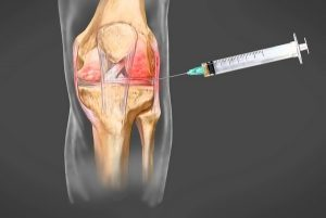 Гонит сустава колена