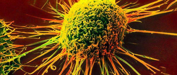 Онкология и ревматоидный артрит