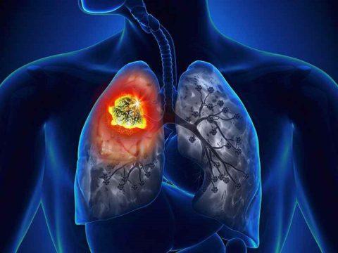 Рак легких – часто встречающийся вид онкологии