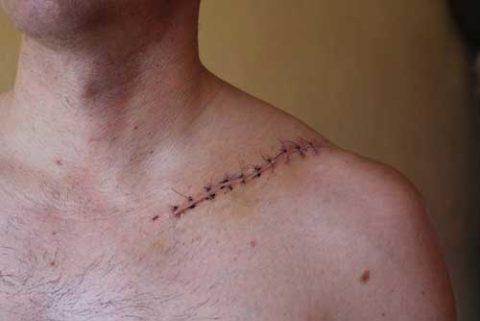 Распространенные осложнения после хирургического лечения сломанной ключицы человека