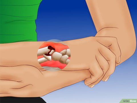 Распространенные последствия травмы лучевой кости наруке