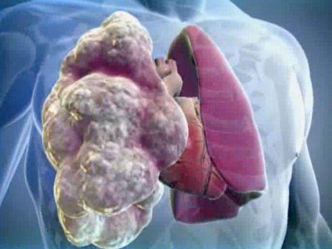 Расширение лёгких развивается постепенно