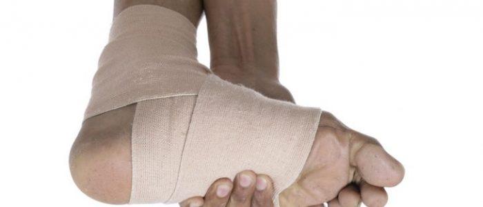 Как лечить растяжение голеностопа в домашних условиях?