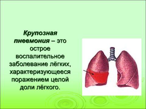 Разновидность пневмонии