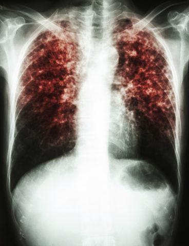 Разновидность туберкулеза