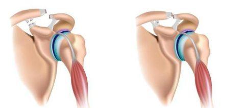 Разновидности вывихов суставных структур плеча