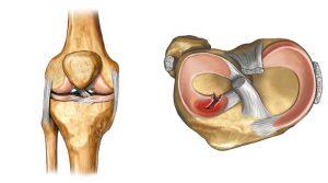 Причины и лечение артропатии