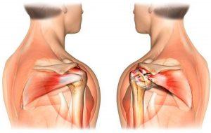 Порванные связки плечевого сустава