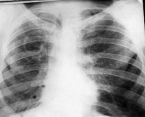 Разрушение легочной ткани микобактериями туберкулёза