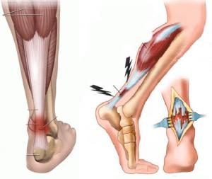 Травма капсульно-связочного аппарата суставов