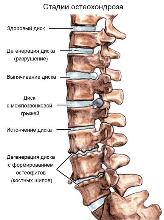 поясничный остеохондроз 2 период