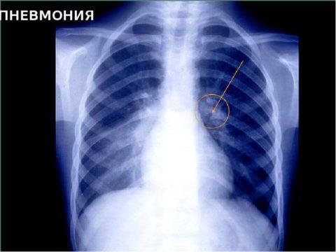 Развитие пневмонии