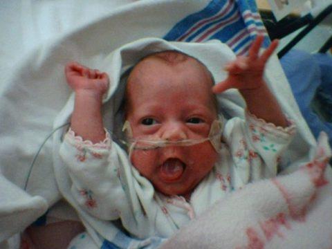 Ребенок с назальным катетером (фото)