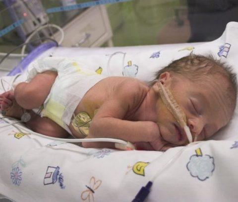 Ребенок с врожденной пневмонией