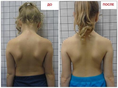 Фото до и после ребенок корректор осанки