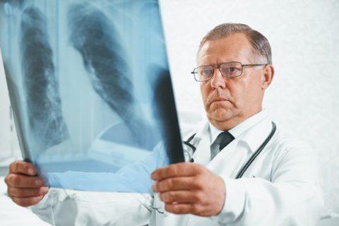Рентген грудной клетки является самым верным способом диагностики пневмонии
