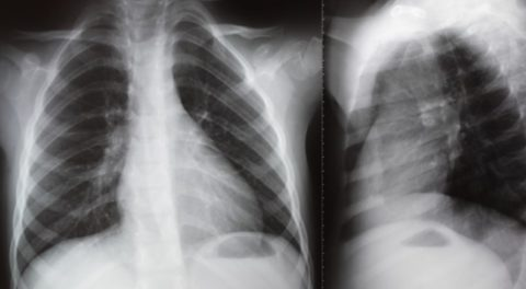 Рентген легких в двух проекциях.