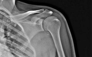 Slap-синдром плечевого сустава