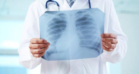 Рентген является надежным методом диагностики воспаления легких