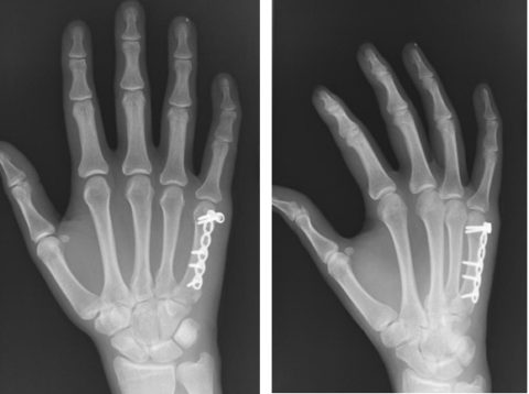 Рентгенографический контроль срастания кости после остеосинтеза