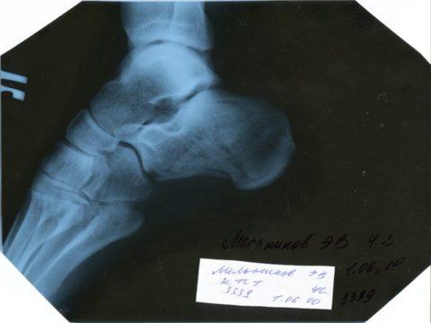 Рентгенография – оптимальный метод диагностики.