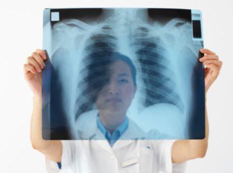 Рентгенография позволяет выявить недуг.