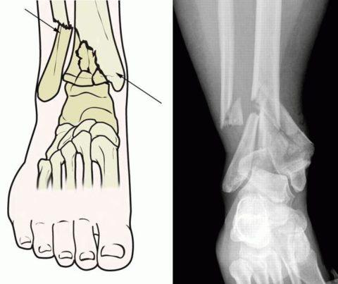 Рентгенологический снимок полученной травмы