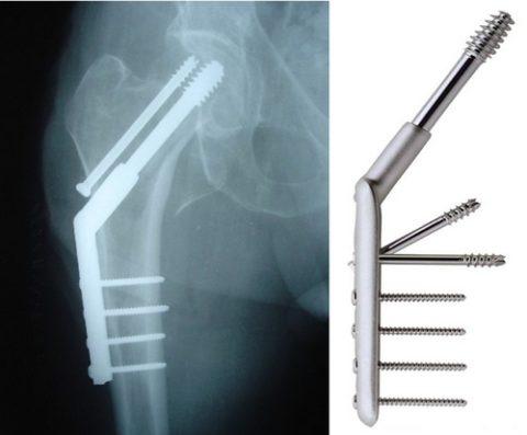 Рентгенологический снимок после проведенного остеосинтеза