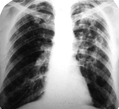 Рентгеновский снимок грудной клетки больного хроническим бронхитом