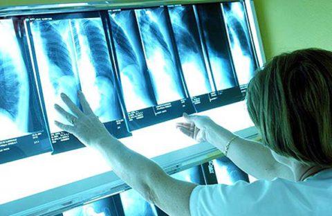 Решение о госпитализации принимает врач на основании состояния больного или результатов диагностики