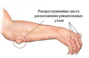 Ревматоидный артрит пальцев на руках