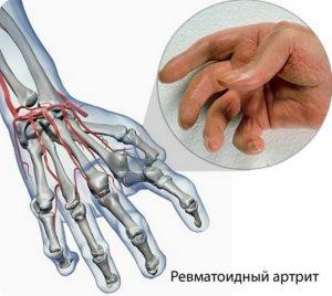 Лечебная гимнастика для пальцев на руках