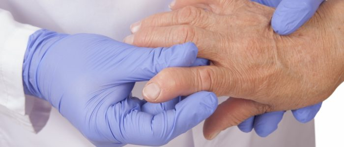 Тонзиллит при ревматоидном артрите