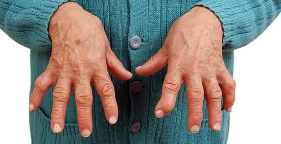 Руки - ревматоидный артрит