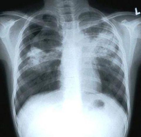 Результаты рентгеновского исследования человека, больного открытым туберкулезом