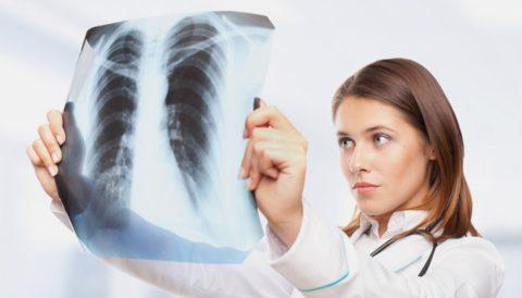 РФ входит в число 22 стран с высоким уровнем заболеваемости туберкулезом.