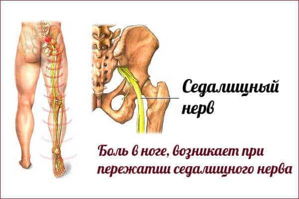Боль в седалищном нерве