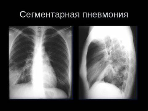 Патологические изменения на рентгене