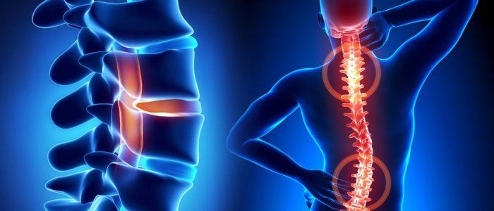 Этиология и лечение серонегативного спондилоартрита