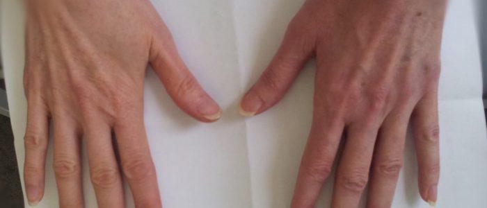 Симптомы и лечение серопозитивного полиартрита