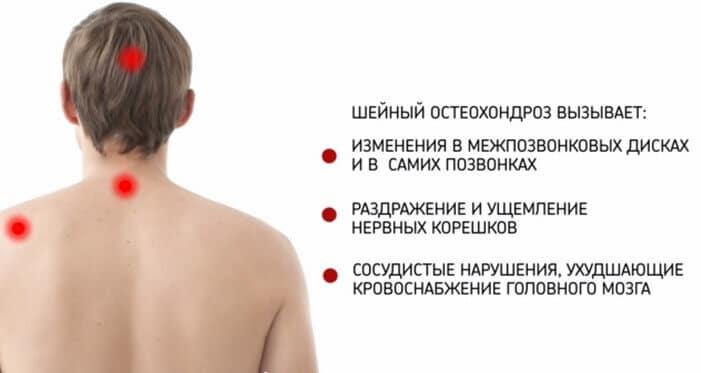 Последствия шейного остеохондроза