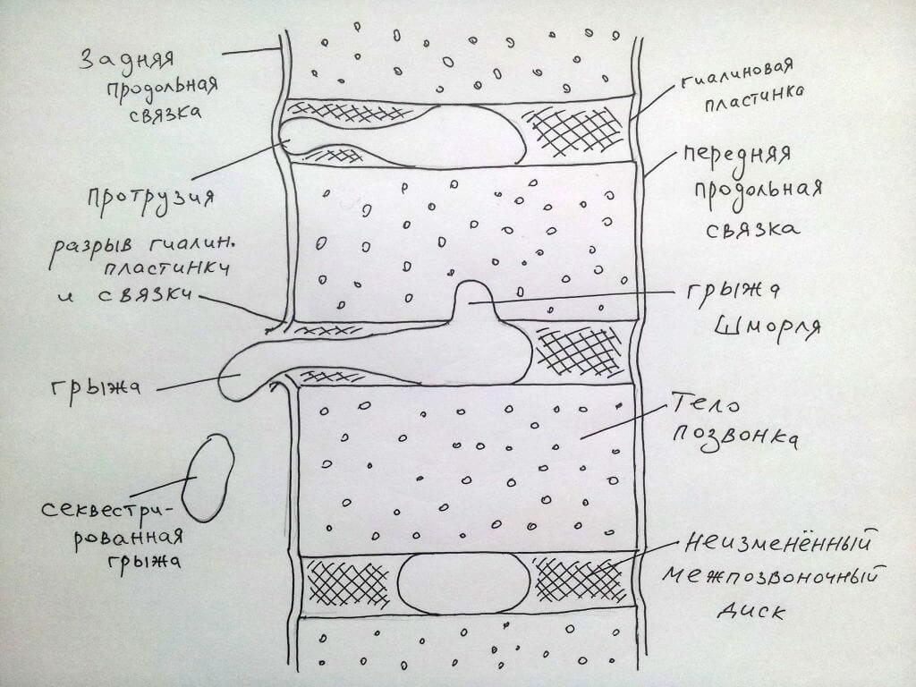 Рисунок грыжи Шморля