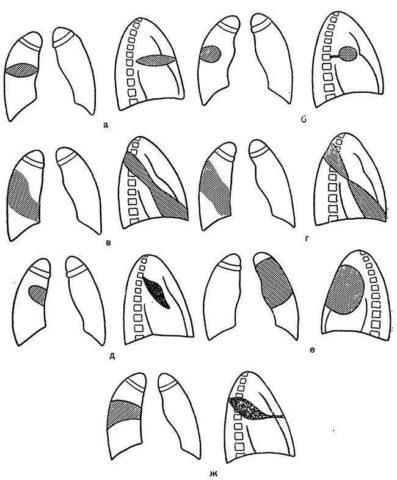 Схема рентгенологического изображения междолевых плевритов (по (Цуппингеру)