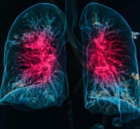 Схематическое изображение двусторонней пневмонии