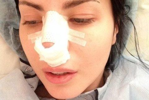 Шинирование после вправления костей носа