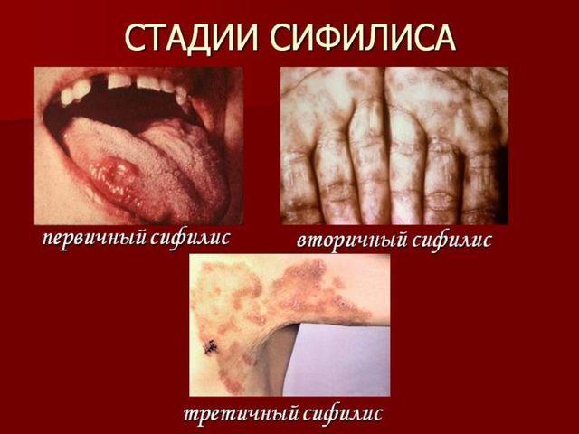 Стадии сифилиса у мужчин