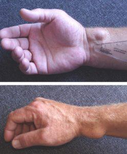 Виды и лечение сухожильного ганглия
