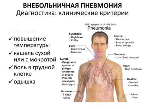 Симптоматика внебольничной пневмонии