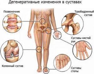Причины и лечение спондилоартрита